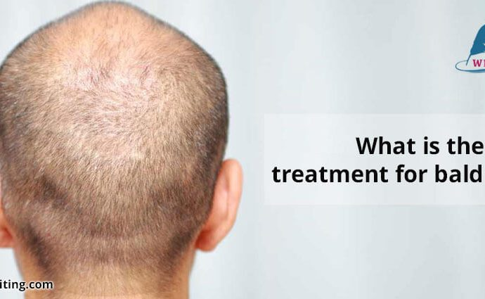 What-is-the-best-treatment-for-baldness