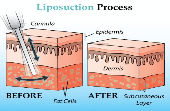 Liposuction process
